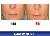 scar treatments - keloids acne pitted surgery